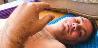 Латанский об иглоукалывании картинка